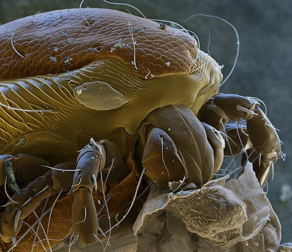 15udivitelnixsozdanii 2 15 удивительных созданий которых не разглядеть без микроскопа