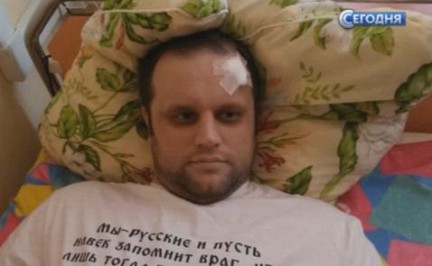 Задержаны подозреваемые в покушении на Губарева