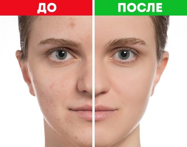 Не усложняйте — 7 ошибок в уходе за кожей, которые ускоряют процесс старения
