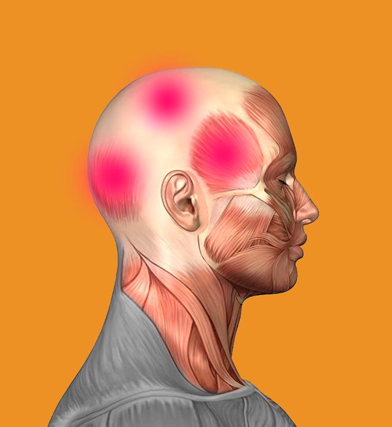 Как снять головную боль без таблеток