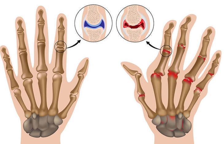 Артрит пальцев рук: 7 натуральных средств, которые успокоят его симптомы
