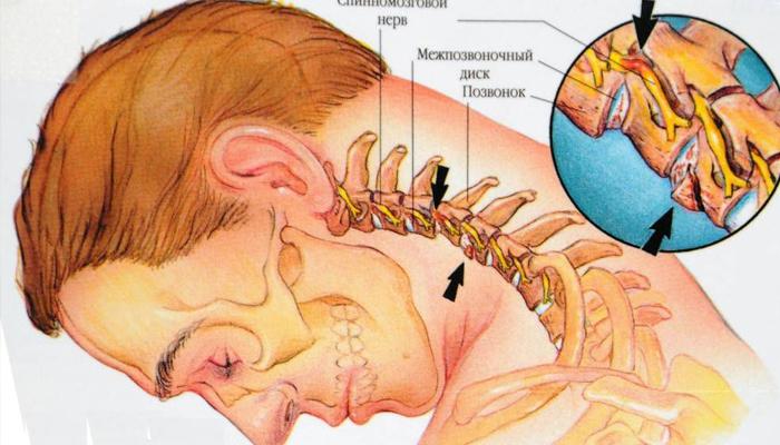 Здоровое состояние всего организма человека зависит от здорового состояния позвоночника