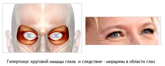 Проявление гипертонуса лицевых мышц
