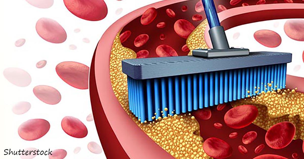 Как один фрукт может хорошенько вычиÑтить ваши артерии