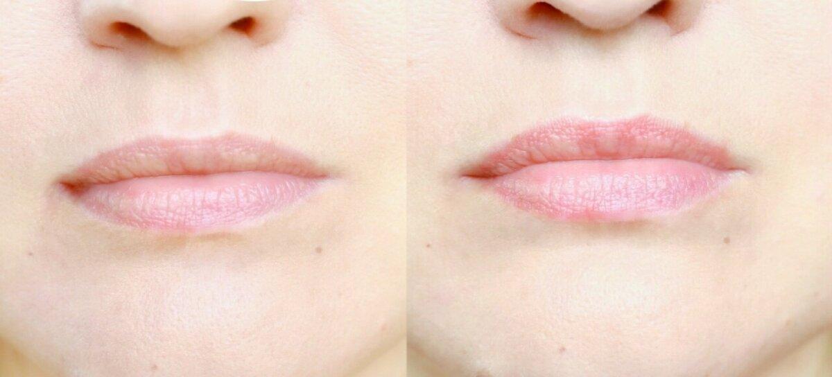 До и после блеска Ламель