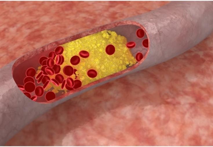 5 симптомов закупорки артерий