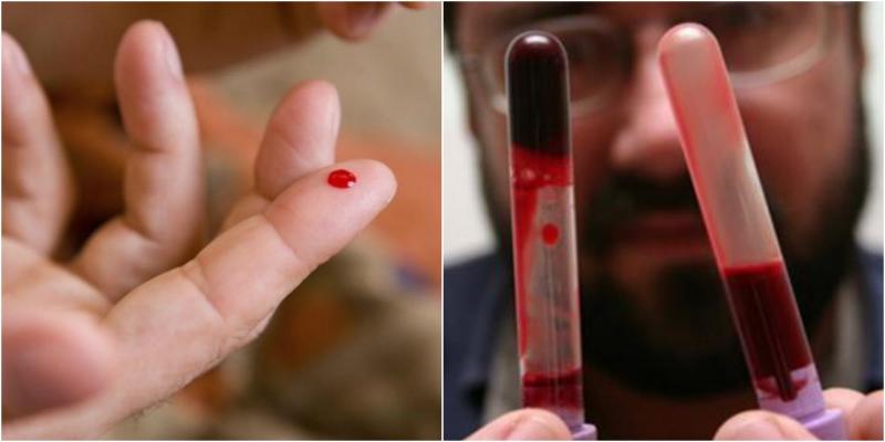 Внимание — густая кровь!