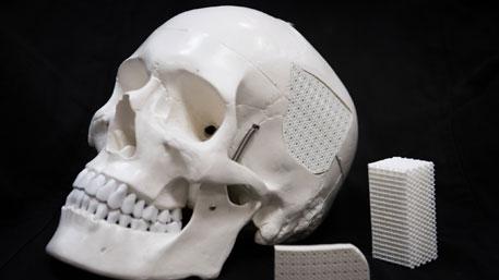 Российские ученые изобрели имплантанты костей из полиэтилена