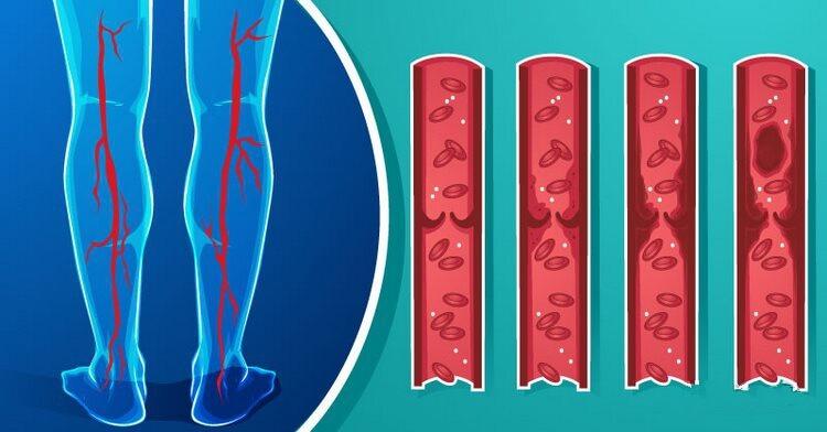 Как разжижить густую кровь: вот 7 продуктов, которые кардиологи рекомендуют употреблять