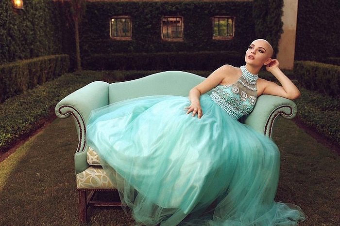 17-летняя девушка, болеющая раком, позирует для фотосессии без парика
