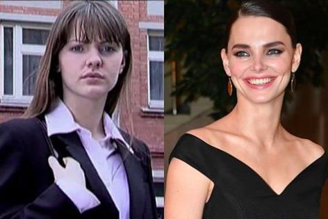 Пластический хирург рассказал об изменениях во внешности Елизаветы Боярской