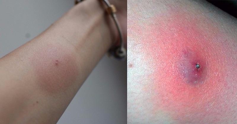 как выглядит укус ядовитого паука