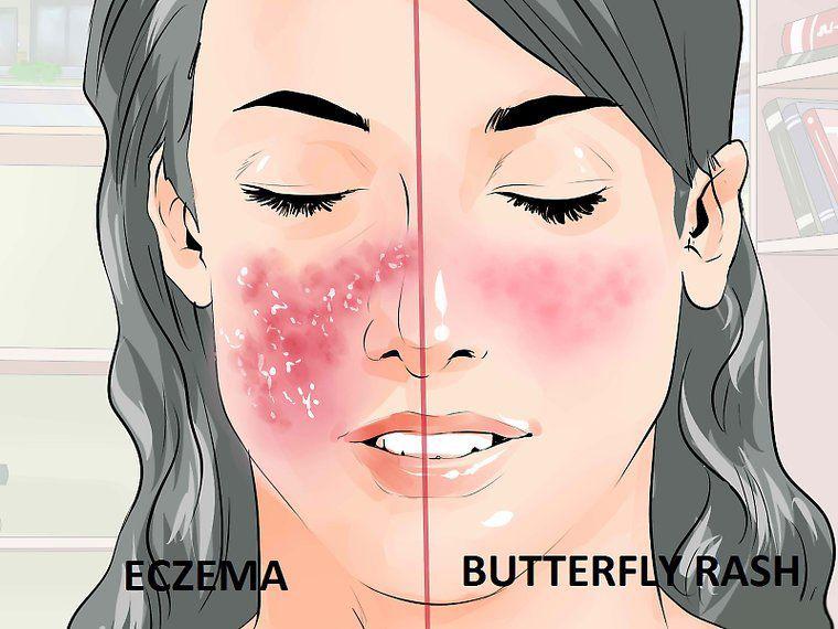 Как проявляются ревматические болезни