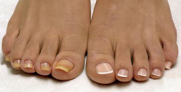 Средства для лечения грибка ногтей