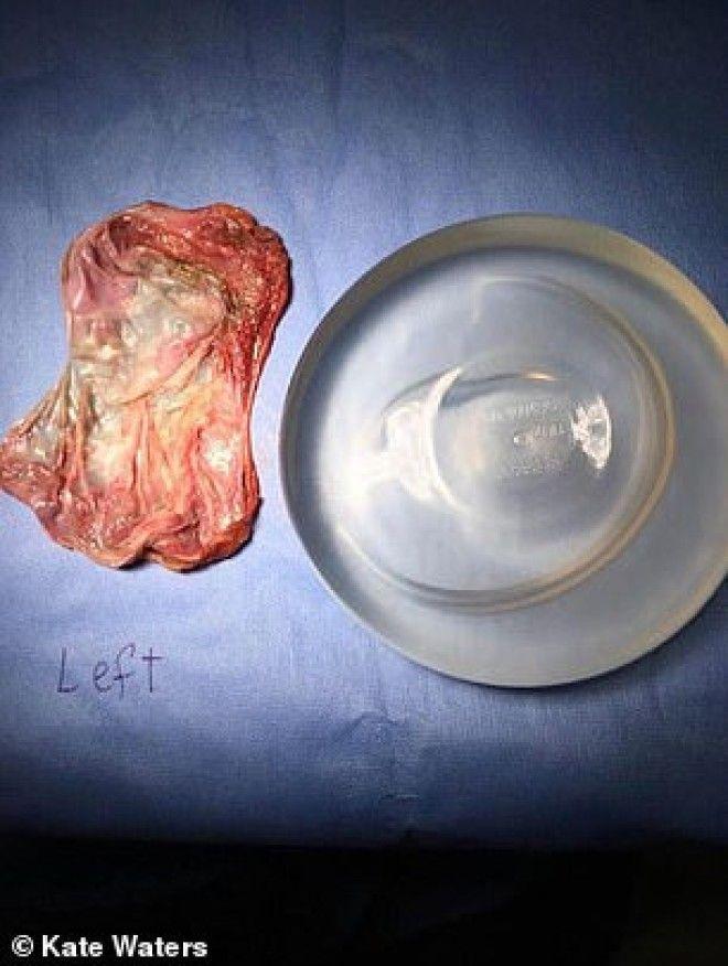 Женщина рассказала настоящую правду о грудных имплантах