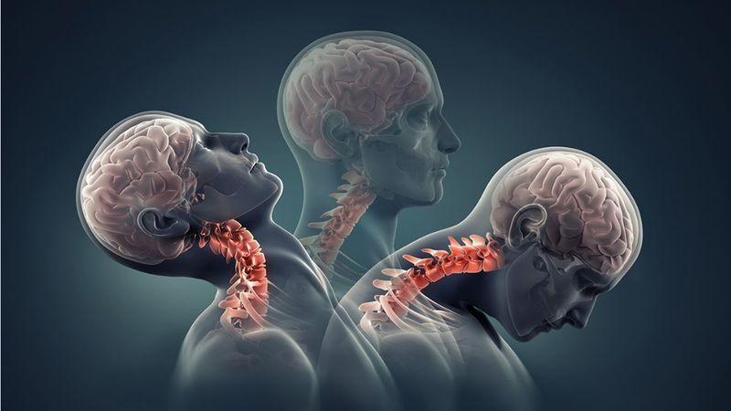 Остеохондроз, остеоартроз, артроз и иже с ними: еще не приговор, если научиться жить полноценно