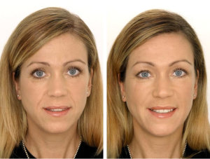 До и после укола красоты