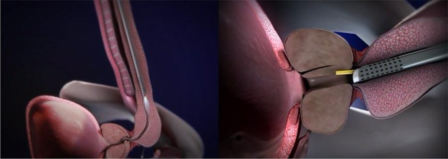 Осложнения после операции тур аденомы простаты