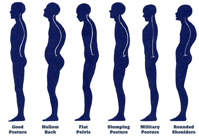 Симптомы остеохондроза пояснично-крестцового отделов позвоночника