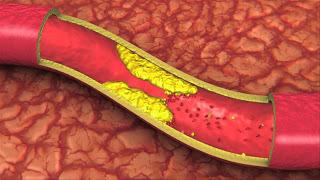 регулировать уровень холестерина в крови с помощью натуральных средств