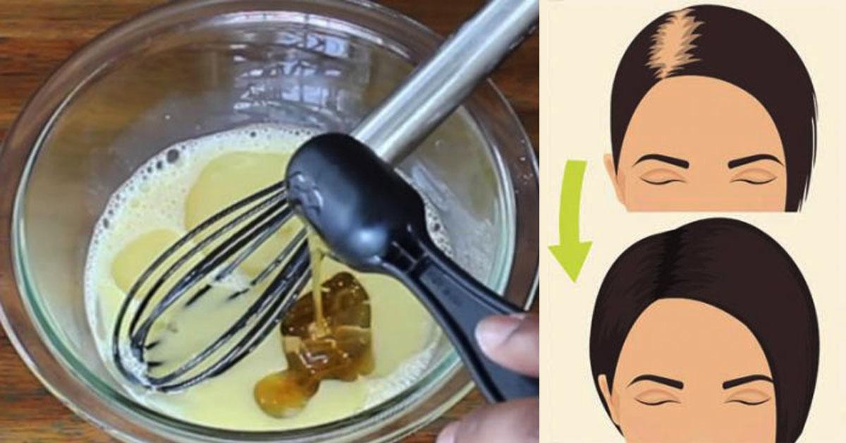 Эти три ингредиента остановят выпадение волос и восстановят их силу и блеск за один раз