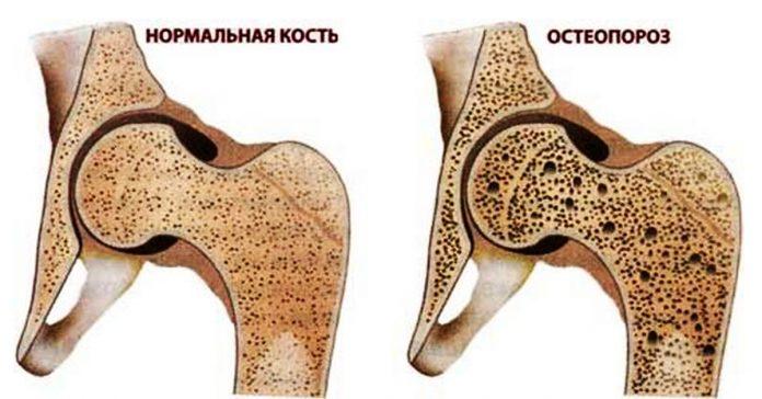 Укрепи кости и остеопороза не будет