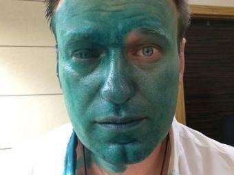Навальный требует срочно выпустить его из России, он ослеп на 80%