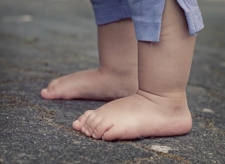 Реабилитолог рассказал, почему щелкают суставы и когда стоит бежать к врачу