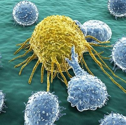 Откуда берется рак?
