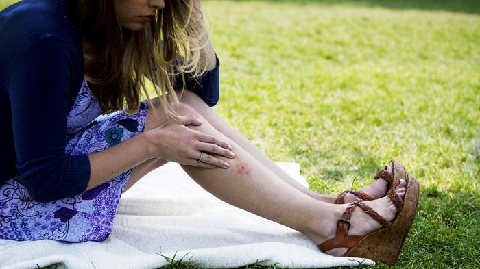Средство, которое мгновенно поможет от зуда после укуса комара