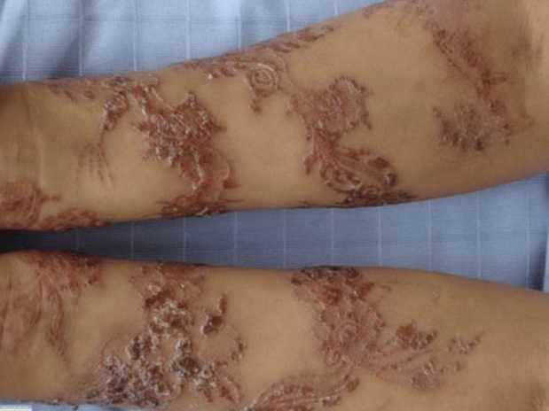 Контактный дерматит, рубцы и ожоги после временного тату: стоит ли делать его детям?