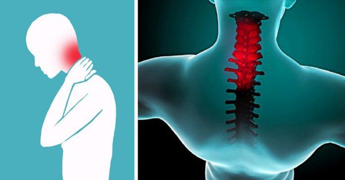 Упражнения для облегчения боли в шее