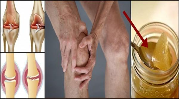 Причина боли коленного сустава — повреждение хряща