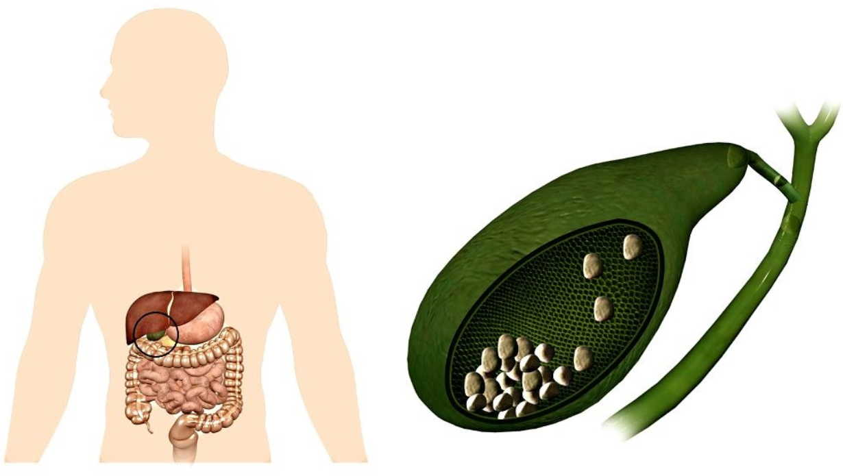 Болотов: как безболезненно растворить и вывести камни в желчном