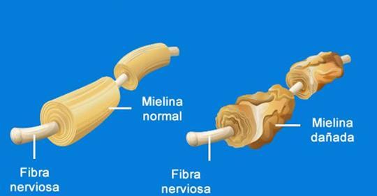 Возможные причины рассеянного склероза