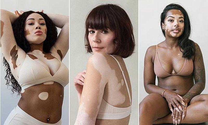Модели с витилиго: красивые и удивительные
