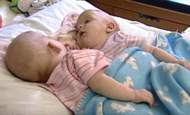 Сиамские близнецы, которых разделили 10 лет назад. Вот она, сила науки!