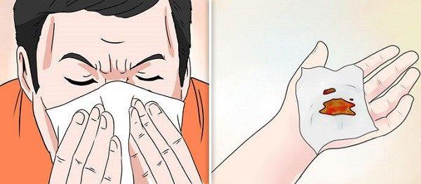 6 приемов, которые помогут быстро остановить кровотечение из носа