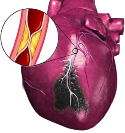 thesis submetted myocardial infarction