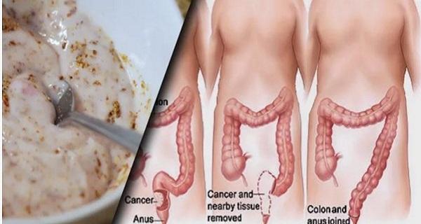 В нашем кишечнике откладываются килограммы отходов и токсинов. Этот метод поможет вам избавиться от них