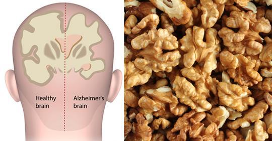 Орех, который помогает бороться с депрессией и болезнью Альцгеймера