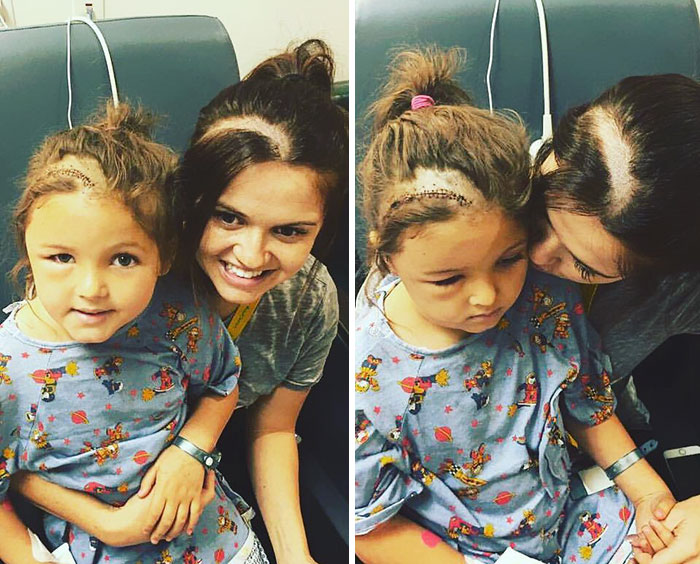 Mom Shaves Her Head So Her Daughter Wouldn't Feel Different After Brain Surgery
