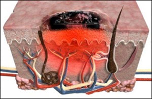 Создано средство от плоскоклеточного рака