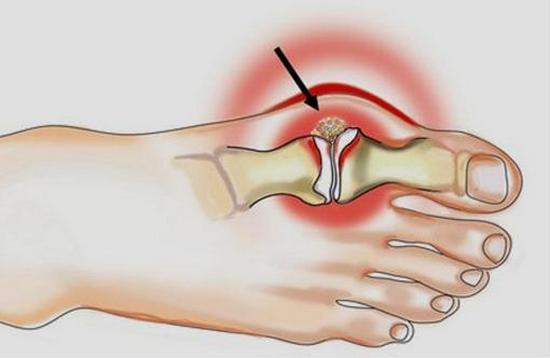 podagricheskij-artrit-lechenie