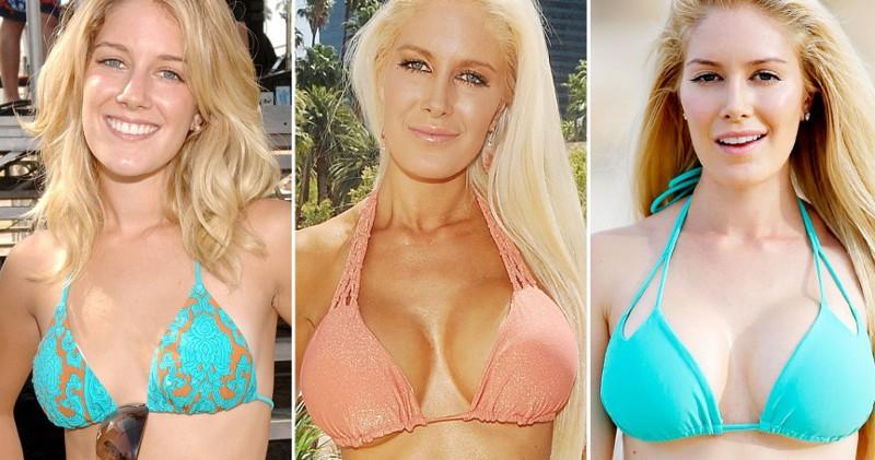 20 знаменитостей, уменьшивших грудь