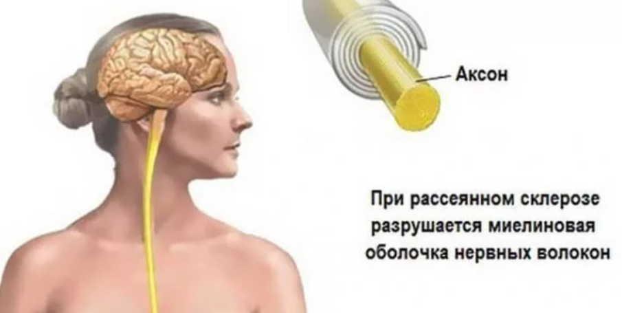 Народные средства для улучшения мозгового кровообращения: скажи