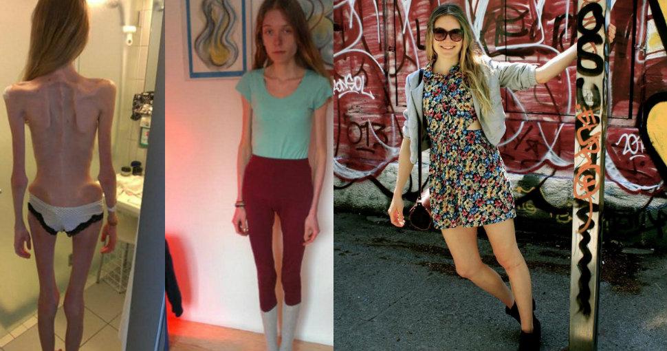 Девушка показывает, на что была похожа, когда весила 31 килограмм, и предостерегает остальных
