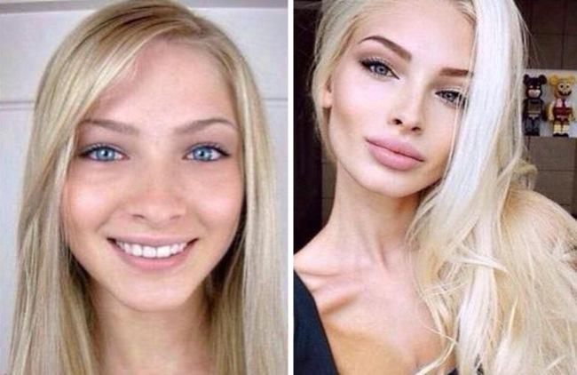 Это же совсем другие лица — 10 российских селебритис до и после пластики