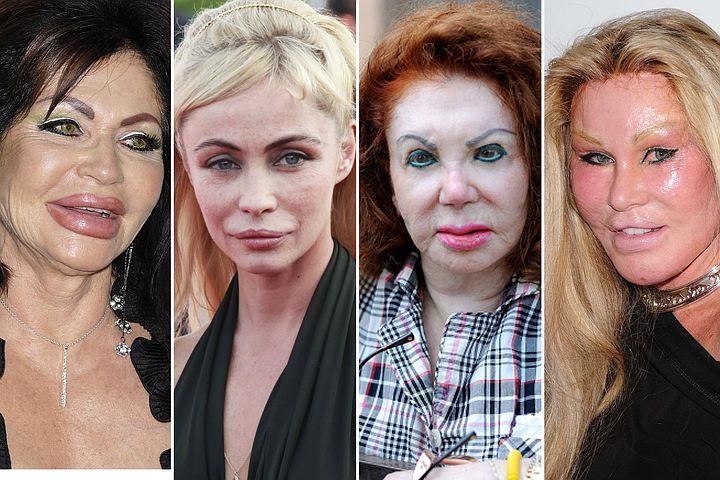 Сделали и пожалели: 10 бывших красавиц, которых испортила пластика