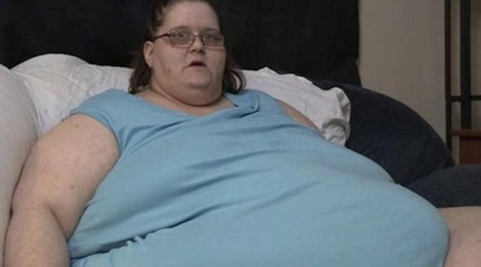 В Австралии женщина весом 272 кг родила 18-килограммового ребёнка